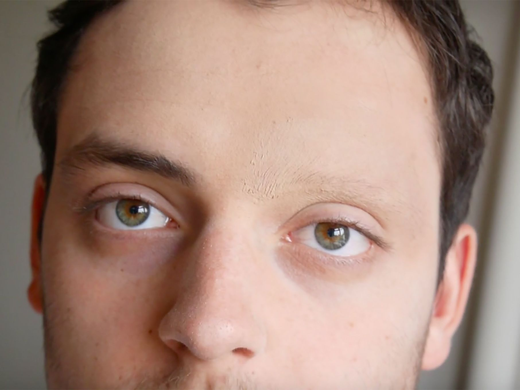 a close-up portrait of a person with one eyebrow missing