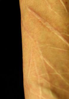 cuts to skin