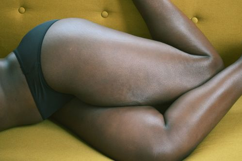 Photograph of black female model's legs lying on a yellow sofa
