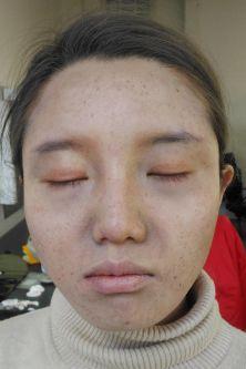 Livia Toso Student Work - Illness Makeup