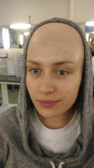 Livia Toso Student Work - Bald Cap