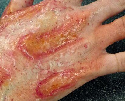 Livia Toso Student Work  - Scar