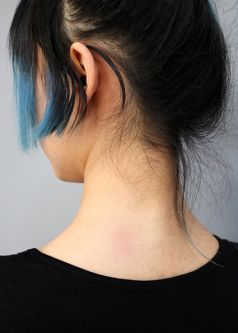 Slight red patch on the back of a person's neck