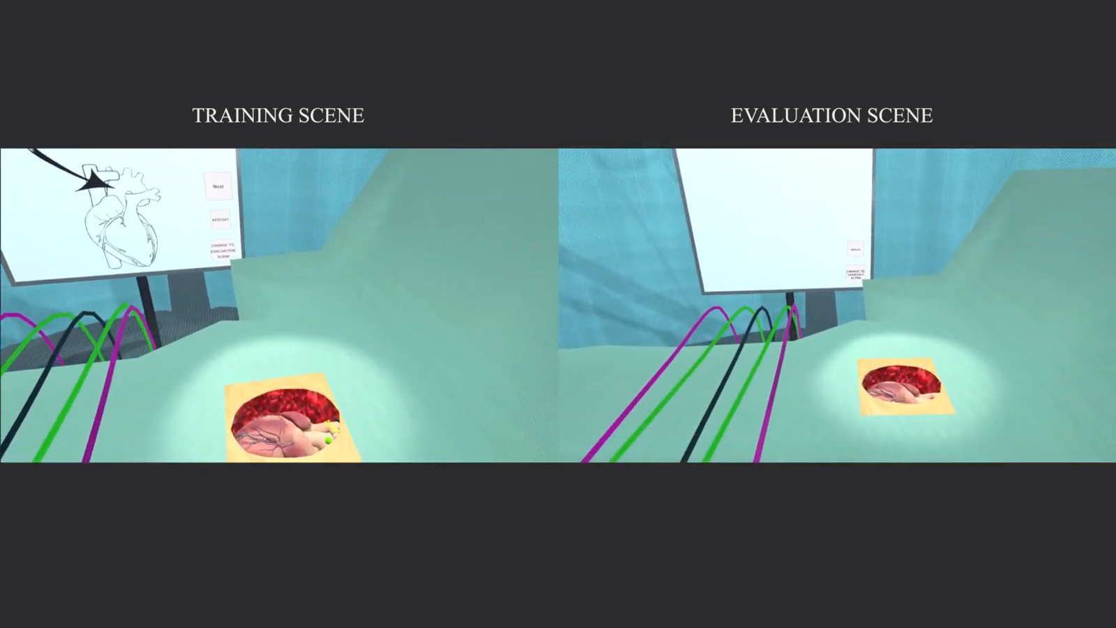 A split-screen of a virtual heart by-pass surgery room.